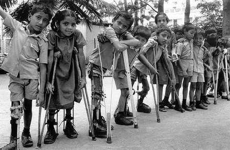 Resultado de imagen de fotos polio