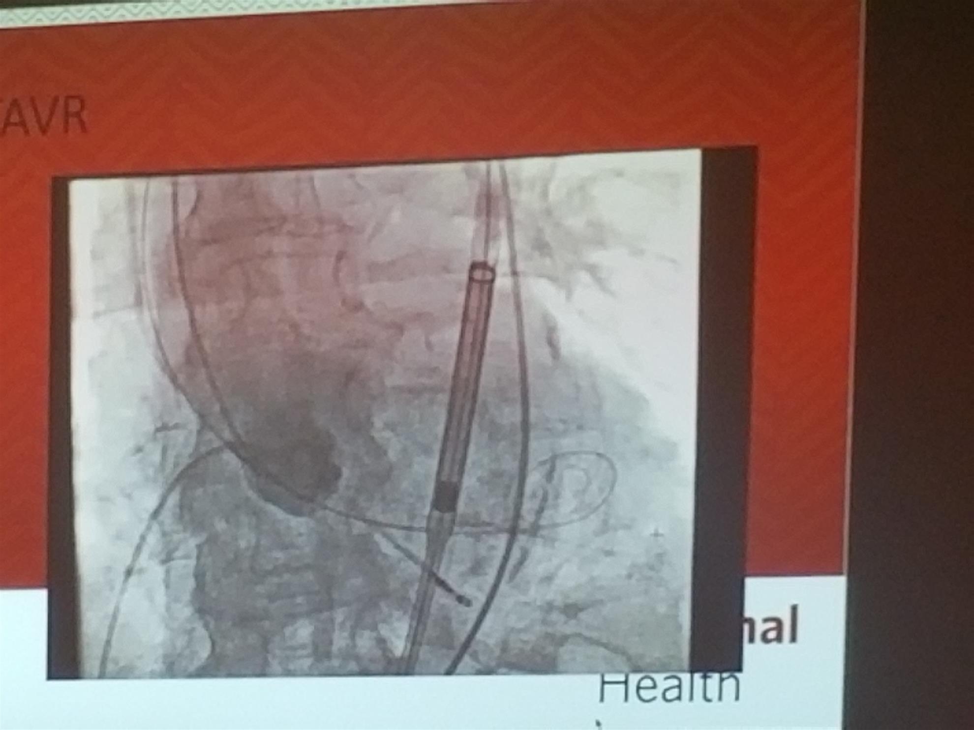Joseph Tuma, MD, Cardiovascular Surgeon