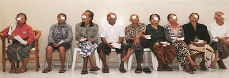 Bali eye surgery