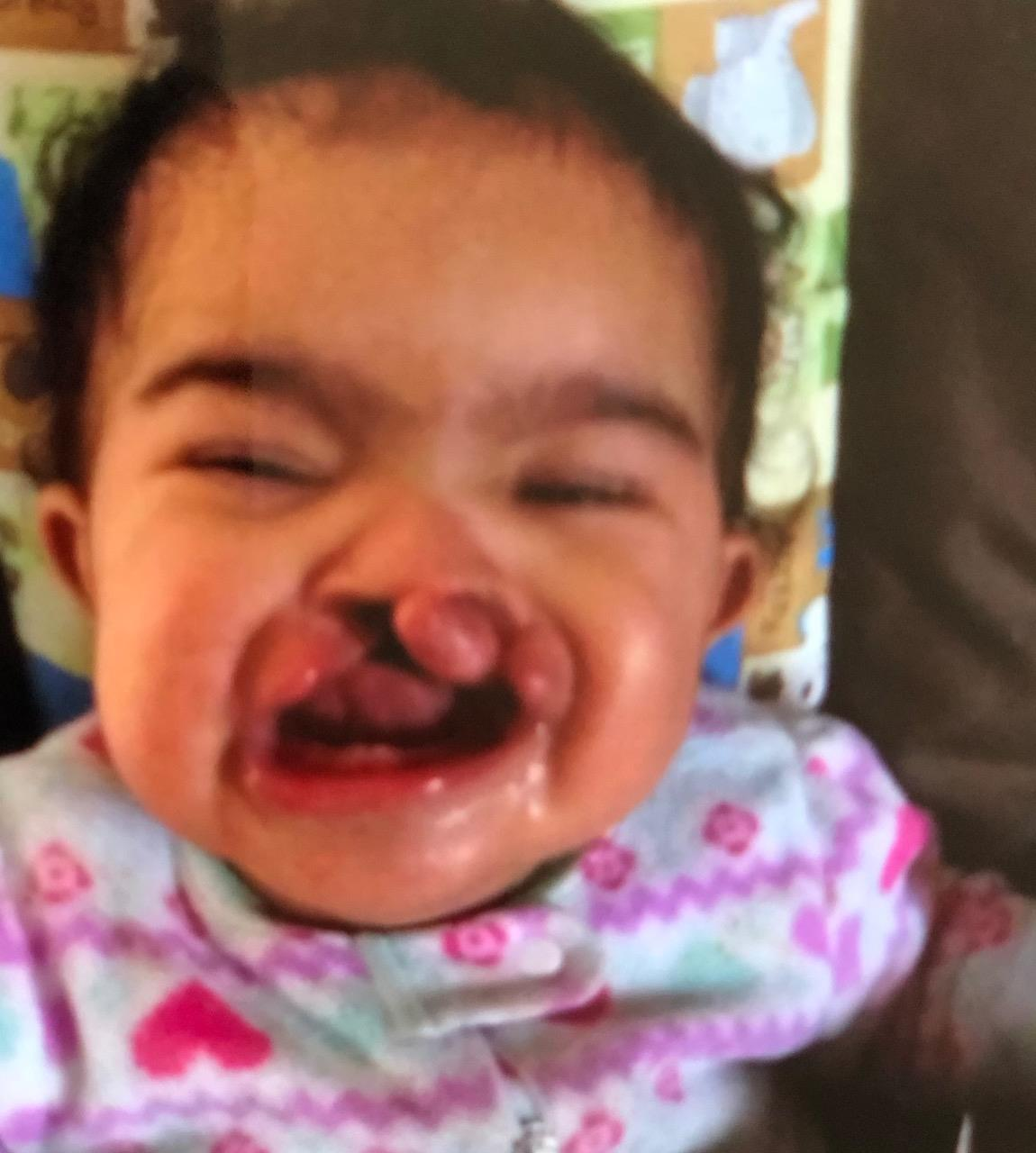 Amara's cleft palate before surgery